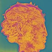 Menzel, Jan | Head-Crysoprase